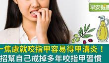 日常小行為卻造成蜂窩性組織炎!學會四個方法,焦慮時不再狂咬指甲
