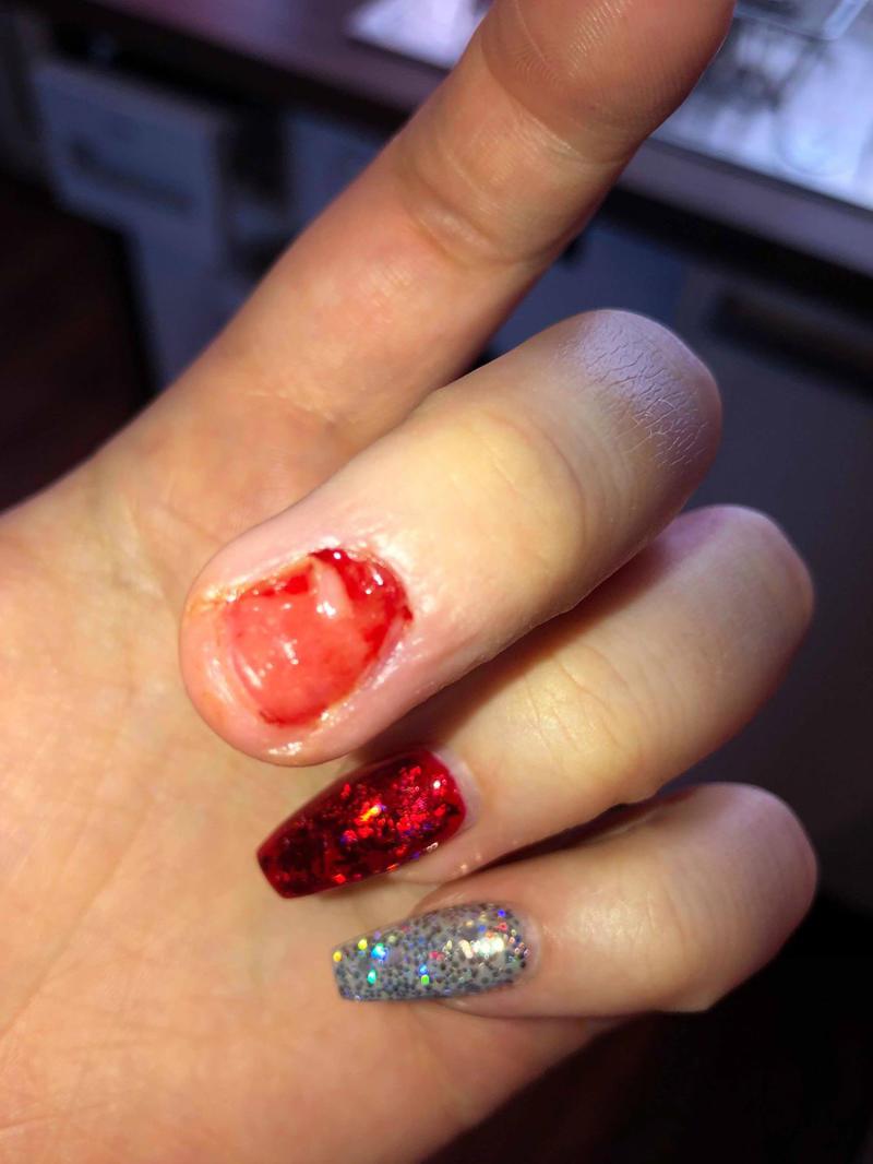 Toni lost entire fingernail after acrylics