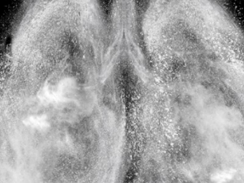 比癌症更可怕 「菜瓜布肺」存活率低