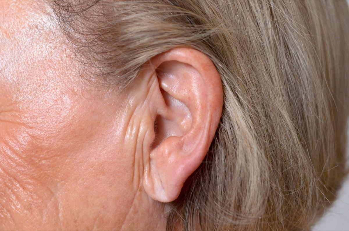 """Take a look at your earlobe. If it has a wrinkle-like line going down it, you might want to put some extra effort into boosting your heart health. """"There are many studies that support an association between [earlobe crease] and [coronary artery disease],"""" according to a 2015 report in the <em><a href=""""https://www.ncbi.nlm.nih.gov/pubmed/26788075"""" target=""""_blank"""">Archives of Medical Science</a></em>.  A number of studies have found that such creases were a sign of an increased risk of coronary heart disease. A 2016 study published in the <em><a href=""""https://www.ncbi.nlm.nih.gov/pubmed/26868940"""" target=""""_blank"""">British Medical Journal</a></em> found that those with creases on both ears were at a greater risk than those with a crease on just one ear."""