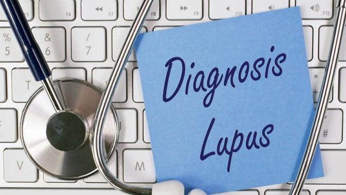 Lupus, Gangguan Autoimun yang Perlu Anda Tahu