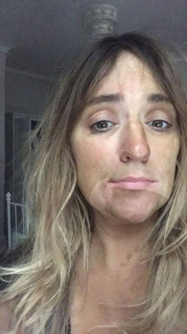 Louise Harper's hilarious fake tan fail after drooling in her sleep. Photo: Kennedy News and Media