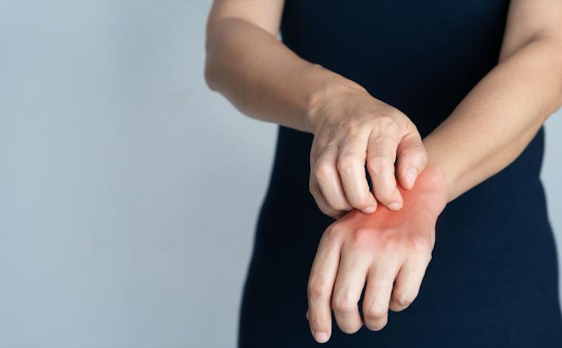 Itching of skin diseases in women using the hand-scratching