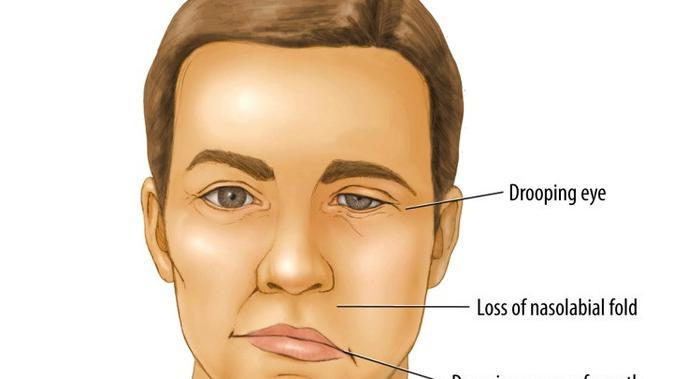 Bell Palsy | Sumber Foto: researchgate.net