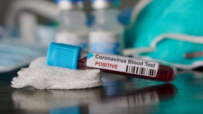 Penjelasan Dokter Kenapa Angka Kasus COVID-19 Masih Tinggi