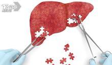 小心脂肪肝變癌症 「地中海型飲食」加3招有效改善