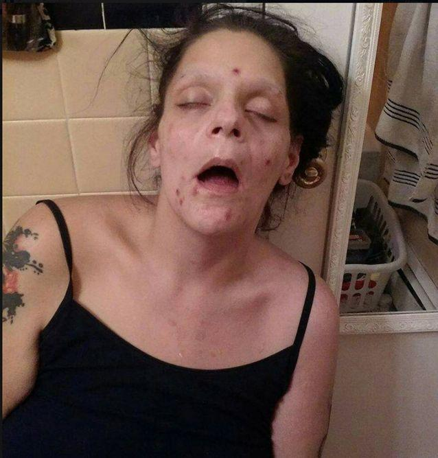 Melissa Lee Matos shared the confronting images to help other drug addicts. Photo: Facebook / Melissa Lee Matos