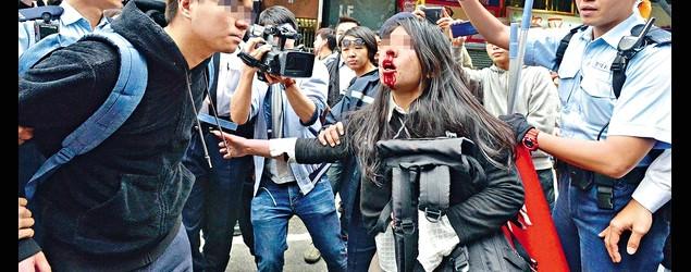 28歲女救被捕男友仆地浴血