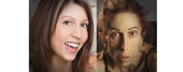 Anorexic woman's public appeal to help save her life