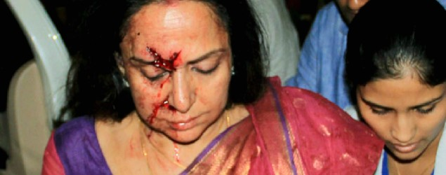 Hema Malini's driver arrested after car accident
