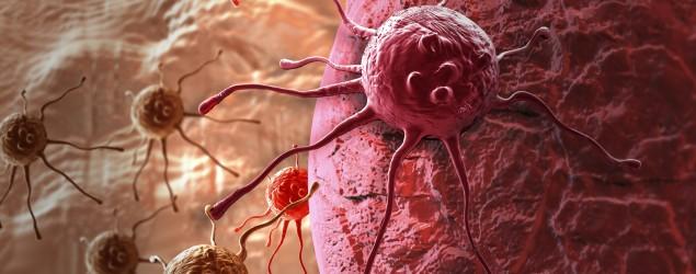 Krebszellen, Bild: Thinkstock