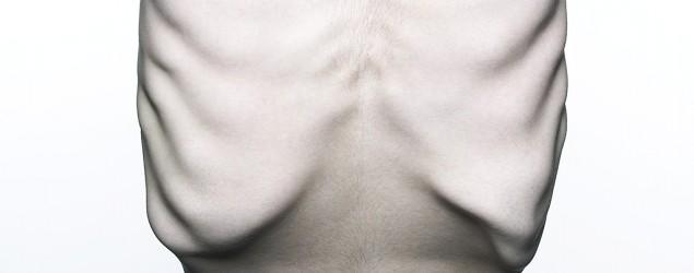 Diagnosing eating disorders in men