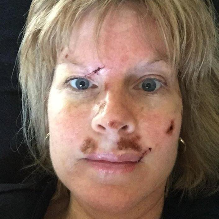 Judy Cloud has undergone several surgeries for skin cancer.