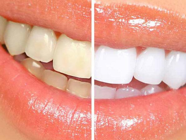 A before and after look at results with the Nuovawhite Charcoal Teeth Whitening System. (Photo: Yahoo Lifestyle Store)