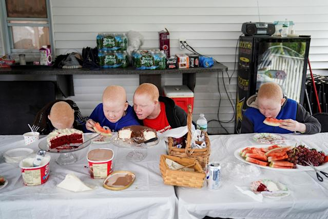 <p>Baraka Lusambo, 7, Mwigulu Magesaa 14, Emmanuel Rutema, 15, and Pendo Noni 16, Tanzanians with albinism who had body parts chopped off in witchcraft-driven attacks, eat dinner at a home in the Staten Island borough of New York City, June 4, 2017. (Photo: Carlo Allegri/Reuters) </p>
