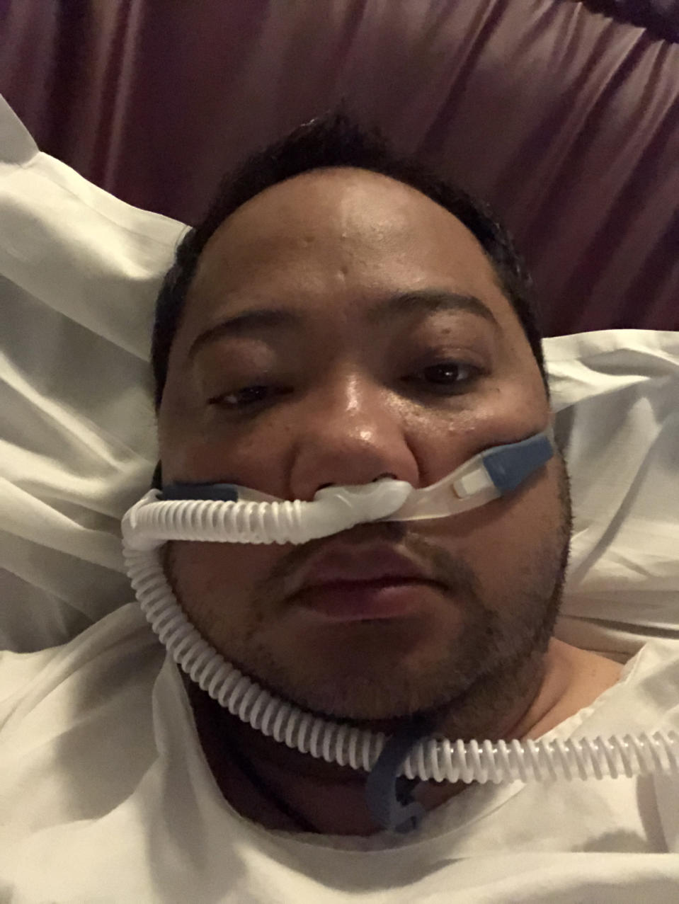 Pictured is Michael Rojales in a hospital bed with tubes hooked to his nose.