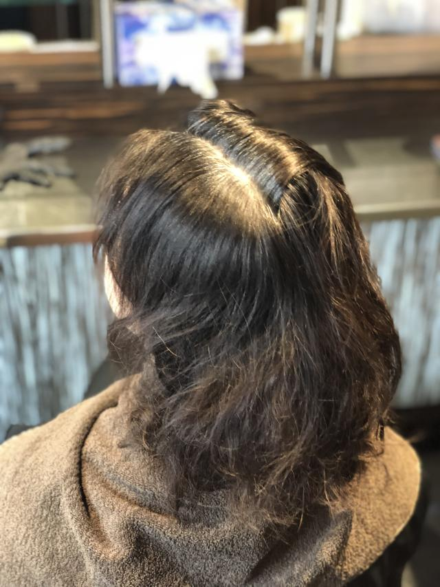 "Gray coverage is a concern for many people when choosing a new color product, and Clairol Nice 'n Easy delivered its promise to completely cover gray growth. Here, a ""before"" photo of the writer's gray roots. (Photo: Alexandra Mondalek for Yahoo Lifestyle)"