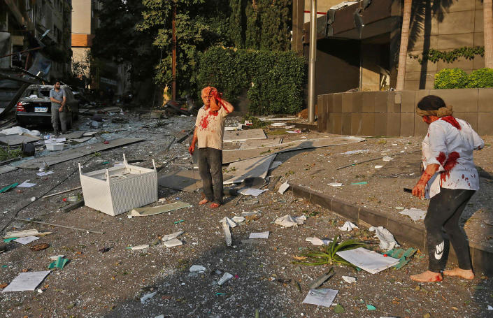 Wounded people walk through the debris in the heart of Beirut following a twin explosion that shook the capital on August 4, 2020.   Marwan Tahtah—AFP via Getty Images