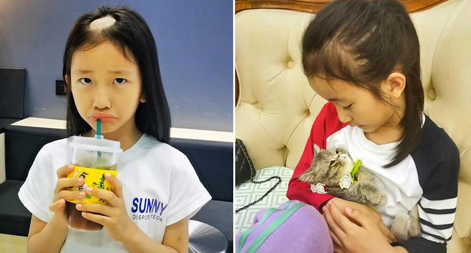 The young girl is seen with her new bald spot and with the adopted cat. Source: AsiaWire/Australscope