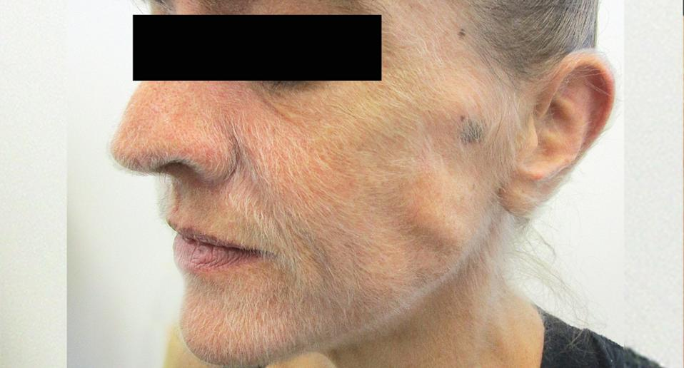 A woman, 51, pictured with small hairs growing on her face.