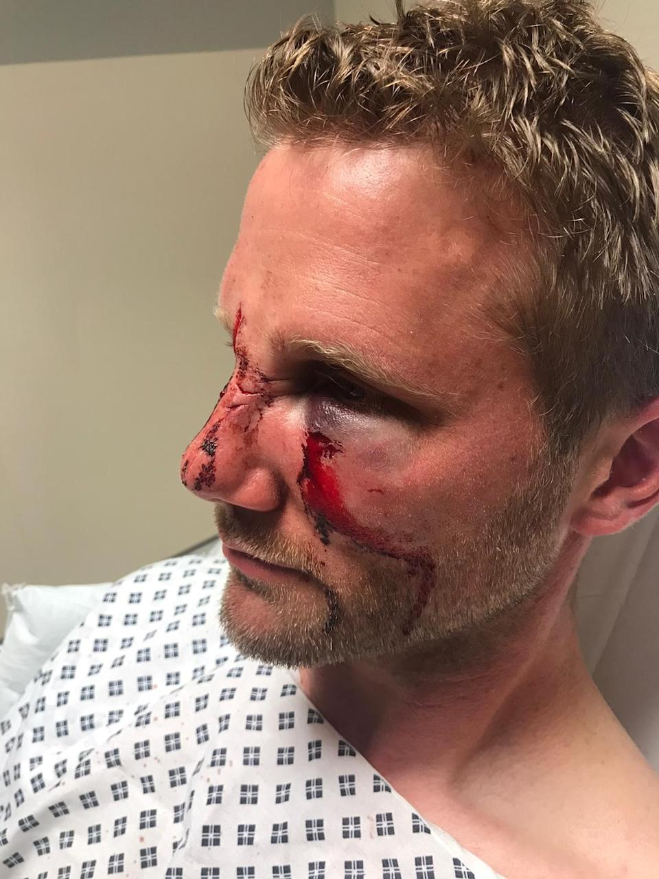 PC Dan Lumley has been left with permanent scarring to his face. (Police)
