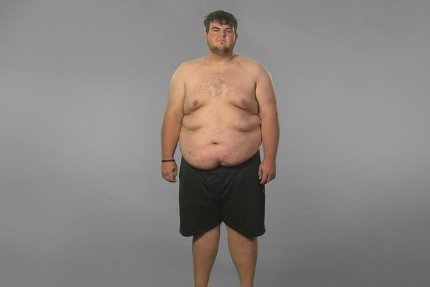 Coolsculpting weight loss cost picture 4