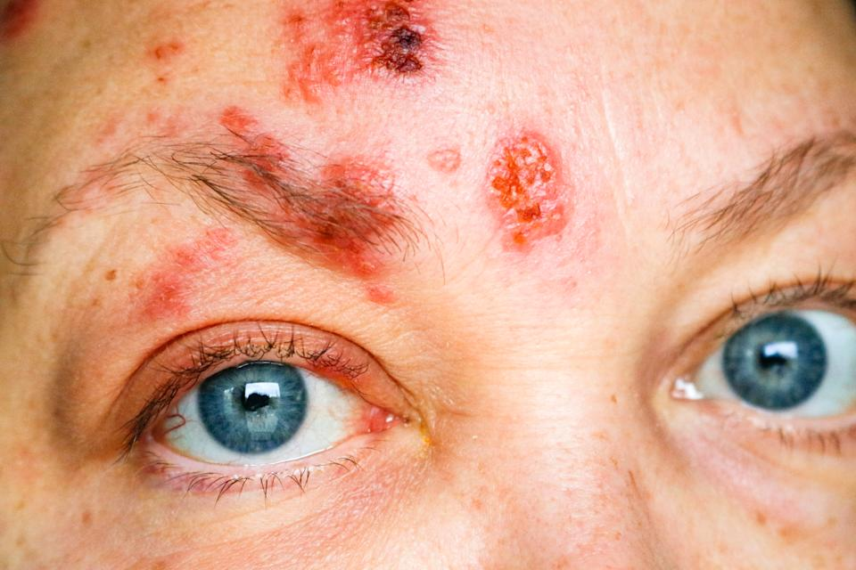 The shingles rash appearing on the face and around the eyes is called ophthalmic herpes zoster or herpes zoster ophthalmicus.