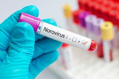 "<span class=""attribution""><a class=""link rapid-noclick-resp"" href=""https://www.shutterstock.com/image-photo/blood-sample-positive-norovirus-1020471673?src=1VmHODbCdu2vPeaQz6_N8Q-1-1"" rel=""nofollow noopener"" target=""_blank"" data-ylk=""slk:www.shutterstock.com"">www.shutterstock.com</a></span>"