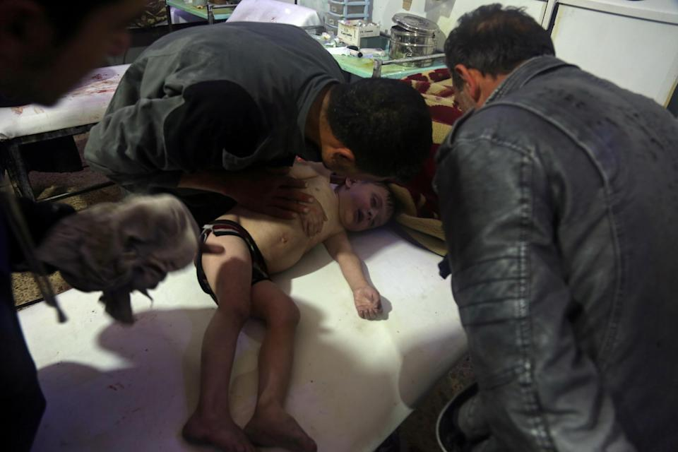 <p>A child is treated in a hospital in Douma, eastern Ghouta in Syria, after what a Syria medical relief group claims was a suspected chemical attack on April, 7, 2018. (Photo: White Helmets/Reuters TV via Reuters) </p>