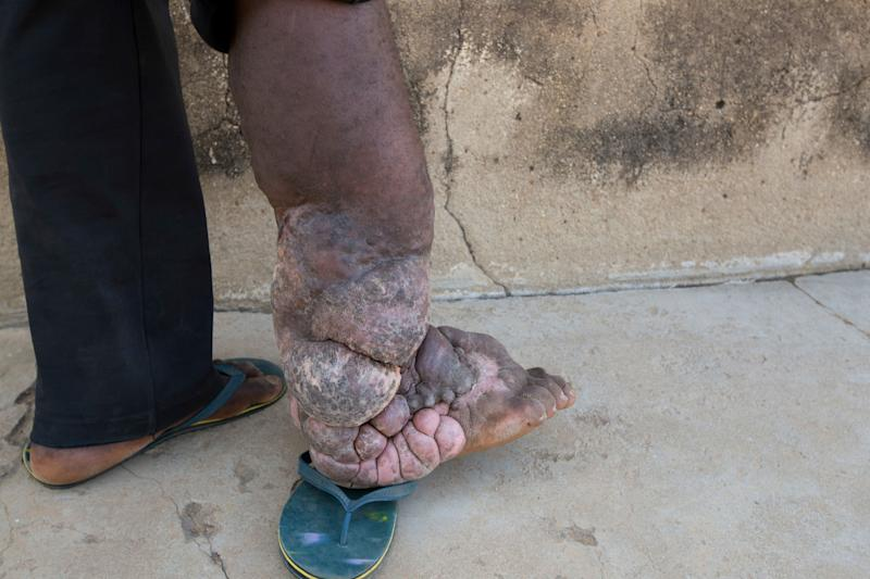 A man in Nigeria with severe elephantiasis.