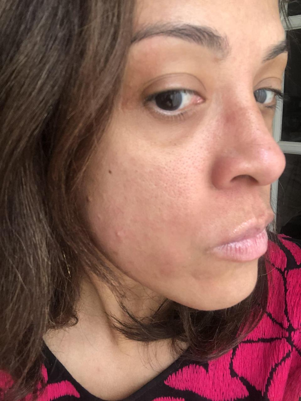 """<p>For the sake of transparency, here is a closeup of my skin. Not only is it easy to see the redness, uneven tone, and <a href=""""https://www.popsugar.com/beauty/summer-hyperpigmentation-treatments-products-47623442"""" class=""""link rapid-noclick-resp"""" rel=""""nofollow noopener"""" target=""""_blank"""" data-ylk=""""slk:hyperpigmentation"""">hyperpigmentation</a> on my (obviously) bare face, I'd like to even point out the marks from where I had been <a href=""""https://www.popsugar.com/beauty/makeup-hack-glasses-video-47057786"""" class=""""link rapid-noclick-resp"""" rel=""""nofollow noopener"""" target=""""_blank"""" data-ylk=""""slk:wearing glasses earlier that day"""">wearing glasses earlier that day</a>.</p>"""