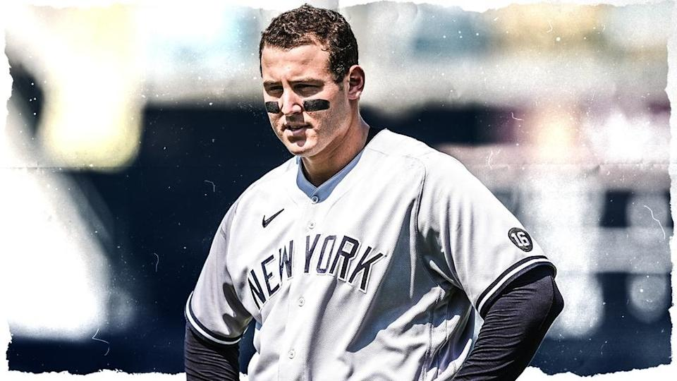 Anthony Rizzo treated image, grey uniform with no hat or helmet and hands on hips