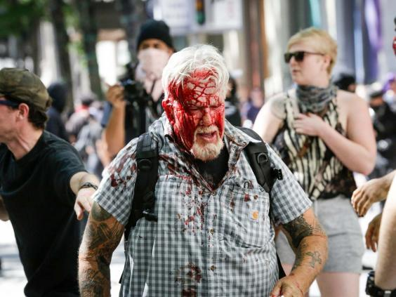 A right-wing protester after being attacked in Portland's Pioneer Courthouse Square on 29 June (Moriah Ratner/Getty Images)