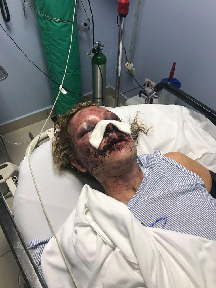 Tammy Lawrence-Daley after the attack | Tammy Lawrence