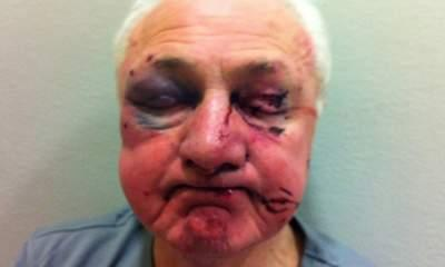 Pensioner Beaten: Police Release Photo Of Injuries