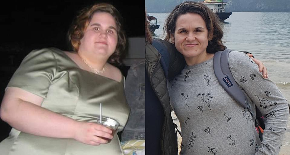 Hyland before and after losing 240 pounds through calorie-counting and exercise. (Photo: Corey Hyland)