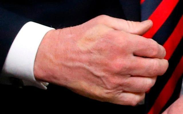 The outlines of Emmanuel Macron's fingers are clearly visible on Donald Trump's hand - REUTERS