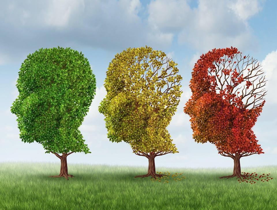 """<span class=""""caption"""">Currently, the only approved drugs for Alzheimer's merely alleviate some of the symptoms — partially and temporarily — but do not stop the disease from progressing. </span> <span class=""""attribution""""><span class=""""source"""">(Shutterstock)</span></span>"""