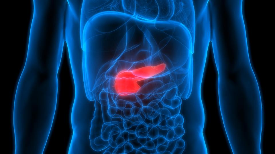 Pancreatic cancer tends to be diagnosed in an advanced stage due to symptoms that are vague, such as pain in the upper abdomen.  (Getty Images)