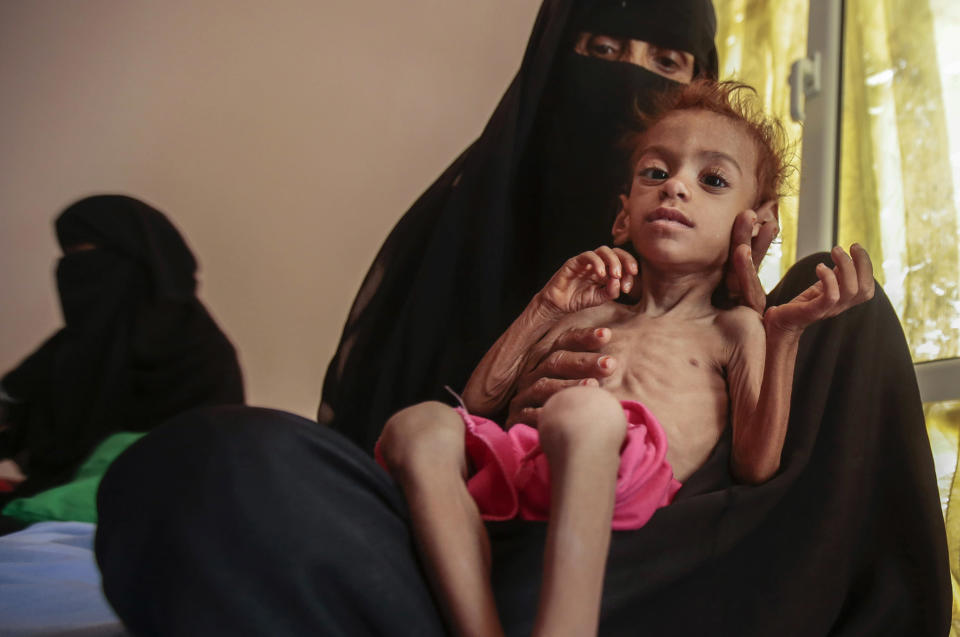 FILE - In this Oct. 1, 2018 file photo, a woman holds a malnourished boy at the Aslam Health Center, in Hajjah, Yemen. On Sunday, Feb. 28, 2021, the U.N. Office for the Coordination of Humanitarian Affairs warned that more than 16 million people in Yemen would go hungry this year, with already some half a million living in famine-like condition in the conflict-wrecked country. The stark warning comes a day before a pledging conference co-hosted by Sweden and Switzerland. (AP Photo/Hani Mohammed, File)