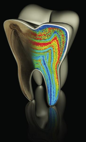 A molar tooth model showing color-coded barium patterns.