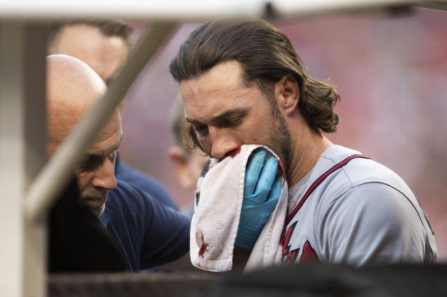 Atlanta Braves Charlie Culberson is taken out of the field after getting hit by a ball during the seventh inning of a baseball game against the Washington Nationals in Washington, Saturday, Sept. 14, 2019. (AP Photo/Manuel Balce Ceneta)