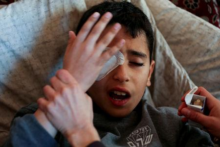 Palestinian boy Mohammad An-Najjar, 12, who was wounded in his eye during a protest at the Israel-Gaza border fence, reacts in pain inside his family house, in Khan Younis, in the southern Gaza Strip, January 17, 2019. REUTERS/Ibraheem Abu Mustafa