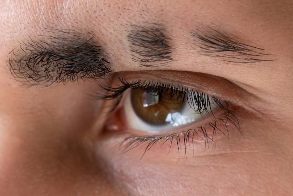 Man with missing eyebrow pieces shaved eyebrow