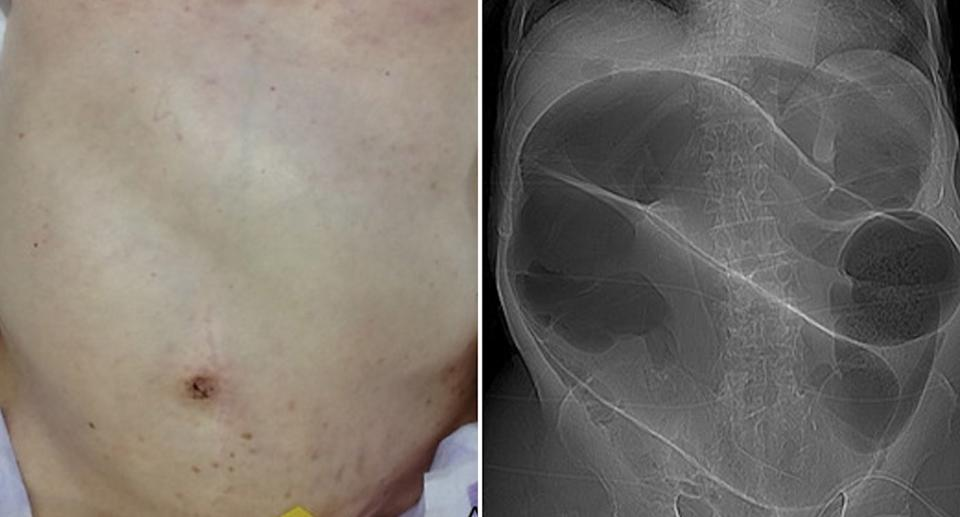 A 'coffee bean sign' seen in a CT scan of a man with sigmoid volvulus.