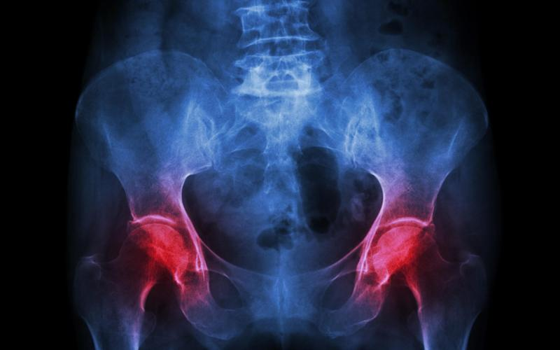 Hip x-ray - Credit: Alamy