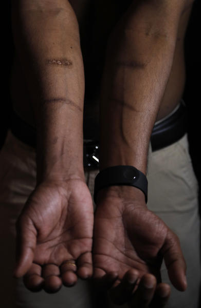 In this July 20, 2017, photo, a Sri Lankan man known as Witness #205 shows scars on his arms during an interview in London. He is one of more than 50 ethnic Tamil men seeking political asylum in Europe, after they were, they said, abducted and tortured under Sri Lanka's current regime. Sri Lanka's defense minister denied Tuesday, Nov. 14, that his country committed torture and rape of suspected rebels, as charged by more than 50 Tamil ethnic minority men. (AP Photo/Frank Augstein, File)