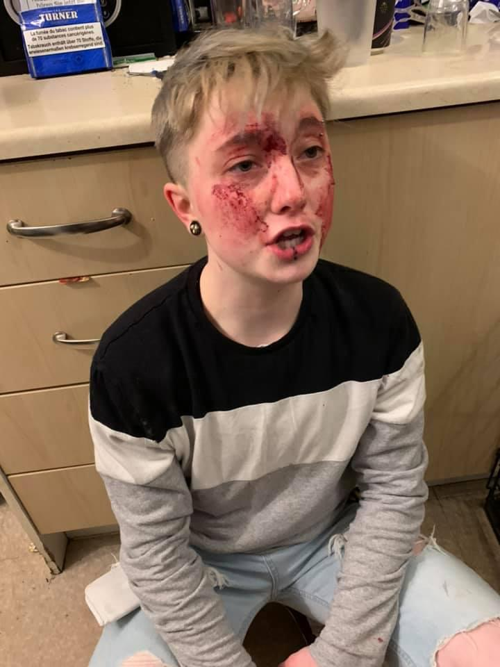 UK lesbian Charlie Graham sitting on her floor with injuries to her face.