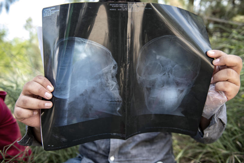 An illegal immigrant holds his x-ray while being detained south of McAllen, Texas on Tuesday, June 5, 2018. The man had suffered a head injury leaving an indentation on his forehead and came to America seeking a medical treatment. (Photo: Sergio Flores for Yahoo News)