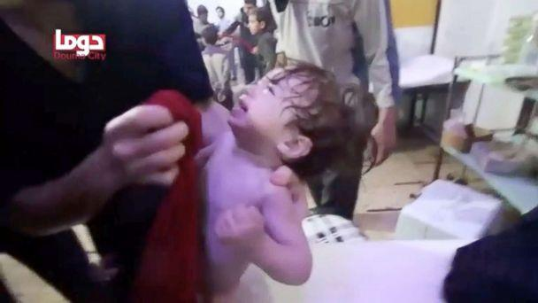 PHOTO: A child cries as they have their face wiped following alleged chemical weapons attack, in what is said to be Douma, Syria in this still image from video obtained by Reuters, April 8, 2018. (White Helmets/Reuters TV via Reuters)